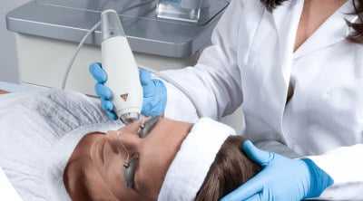 Fraxel laser Behandlung clear and brilliant