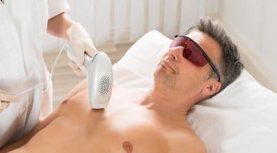 haarentfernung laserbehandlung mann