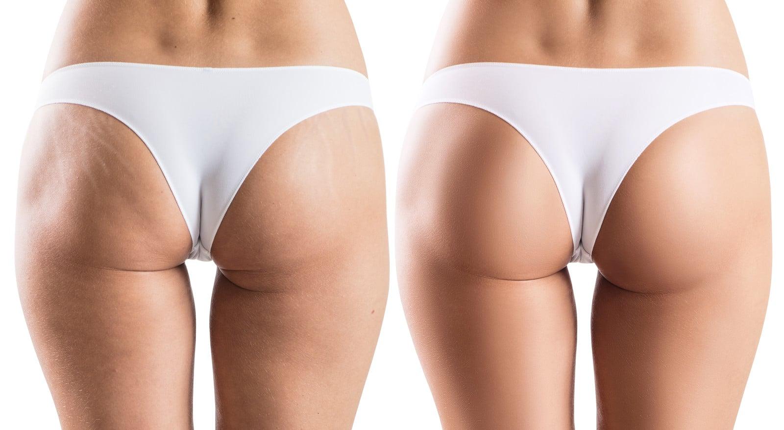 cellulite und adipositas lassen sich mittels Ultraschall cavitation sehr gute bekämpfen